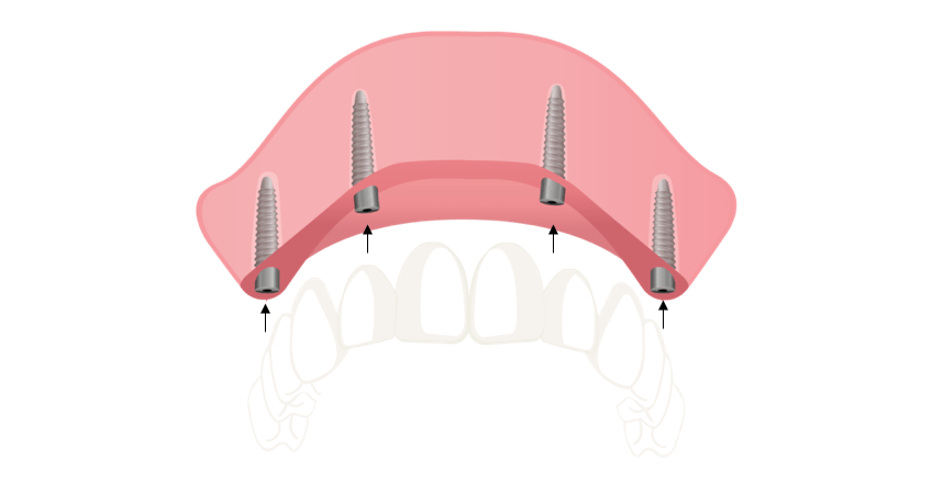 All-on-4- dental-implants- Perth