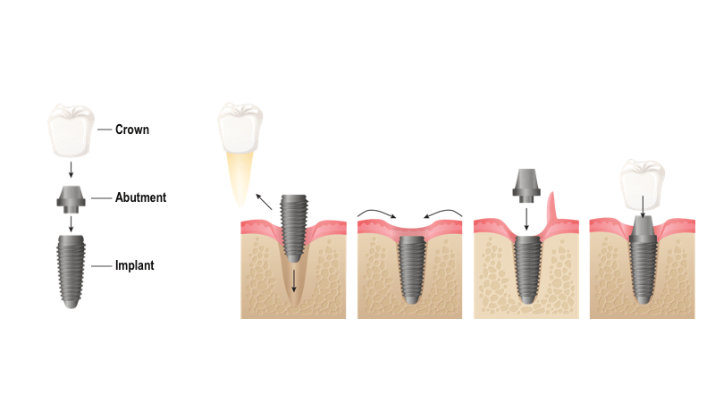 Dental implants Process Perth Alpha Dental